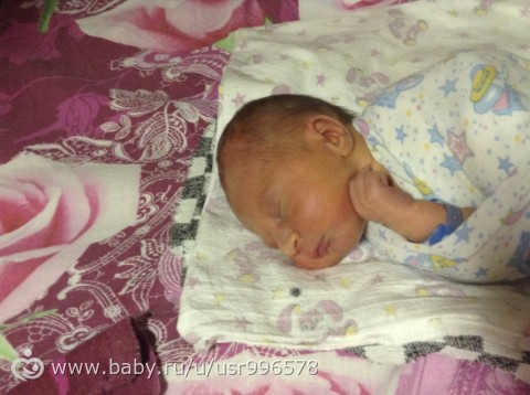 Голова новорожденного вытянутая фото