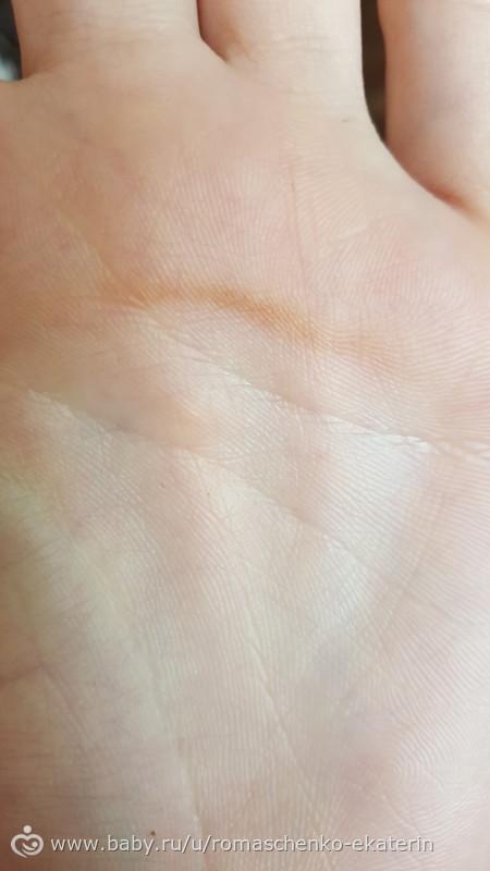 Темные полоски на коже