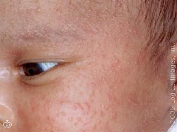 Как отличить акне новорожденных от аллергии фото