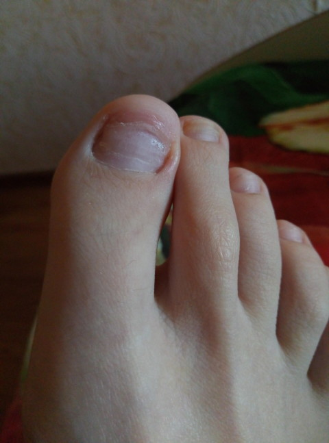 Почему ногти растут вверх на руках