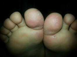 у ребенка трескается кожа на пальцах ног