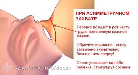 Большие ореолы на груди — pic 8