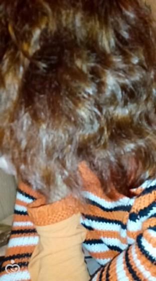 Как я победила выпадение волос после родов!