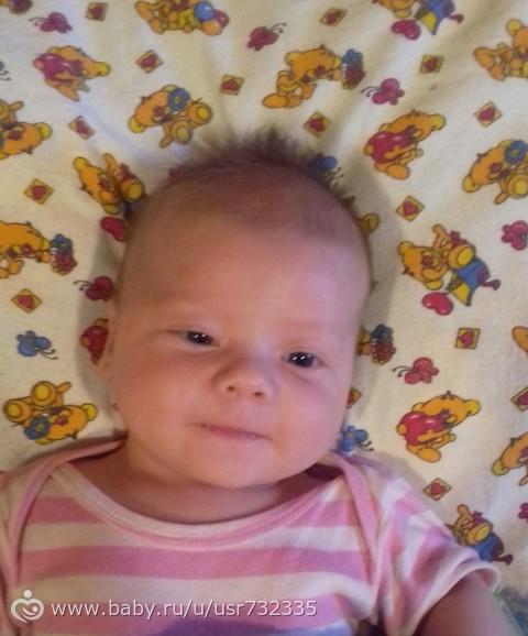 У ребенка асимметрия головы