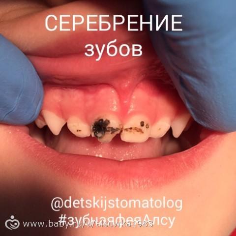 Что лучше серебрение или фторирование зубов