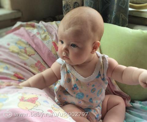 Треугольник на голове у малыша. У кого так было??