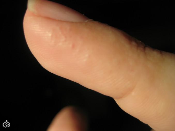 Он, после уточнения причины образований на ладонях, назначит лечение.